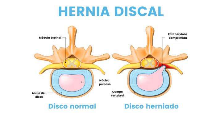 Hernia Discal - Fisioterapia